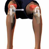 Obat Tradisional Alami Sakit Lutut Fengshibao Fengshijiu Fengshiyou Indonesia